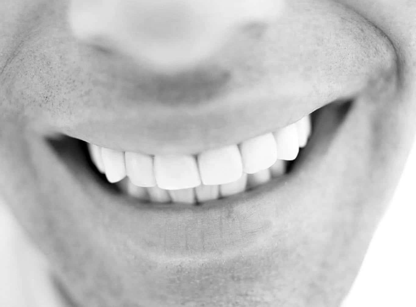 teeth whitening man